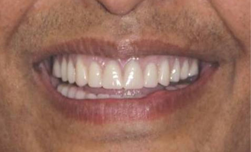 1-after-dental-implants-11229