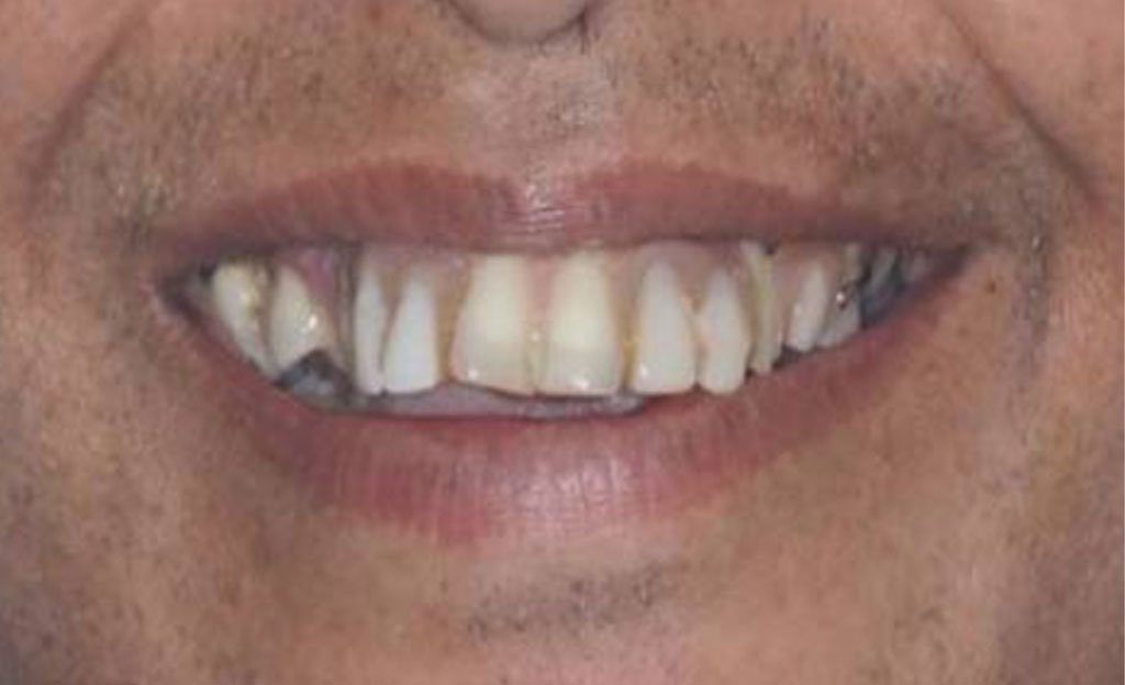 1-before-dental-implants-11229