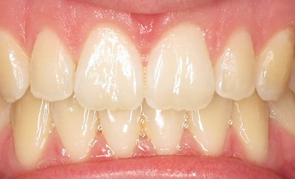 2-after-dental-implants-11229