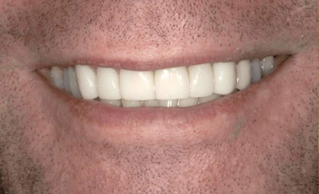 3-after-dental-implants-11229