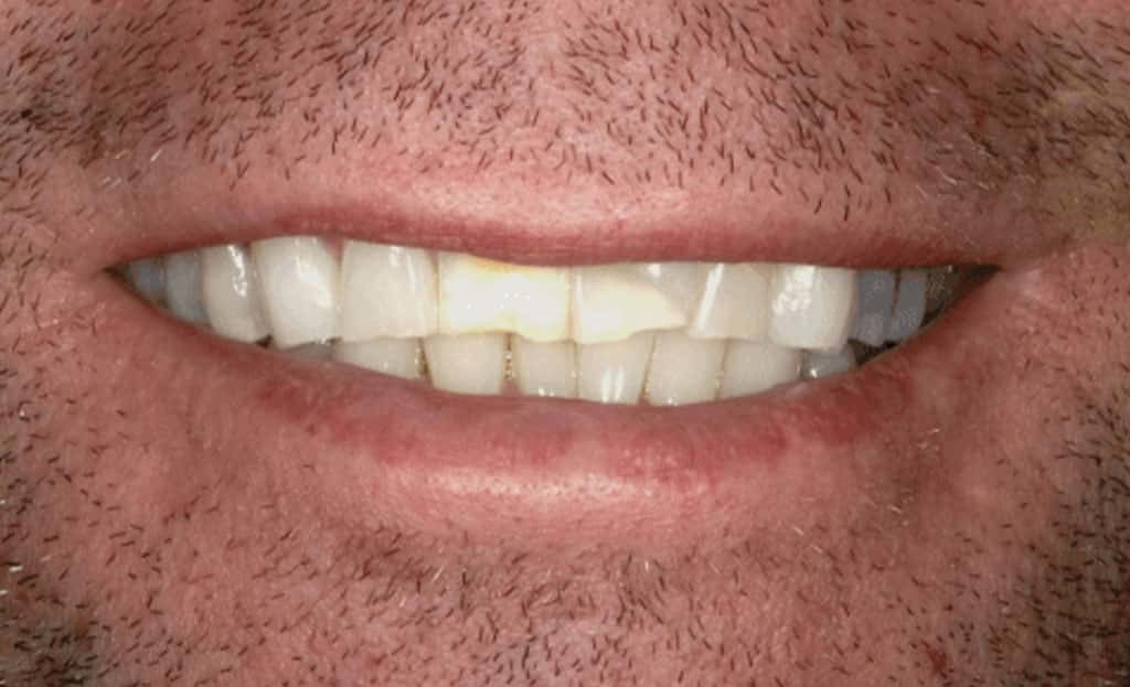 3-before-dental-implants-11229
