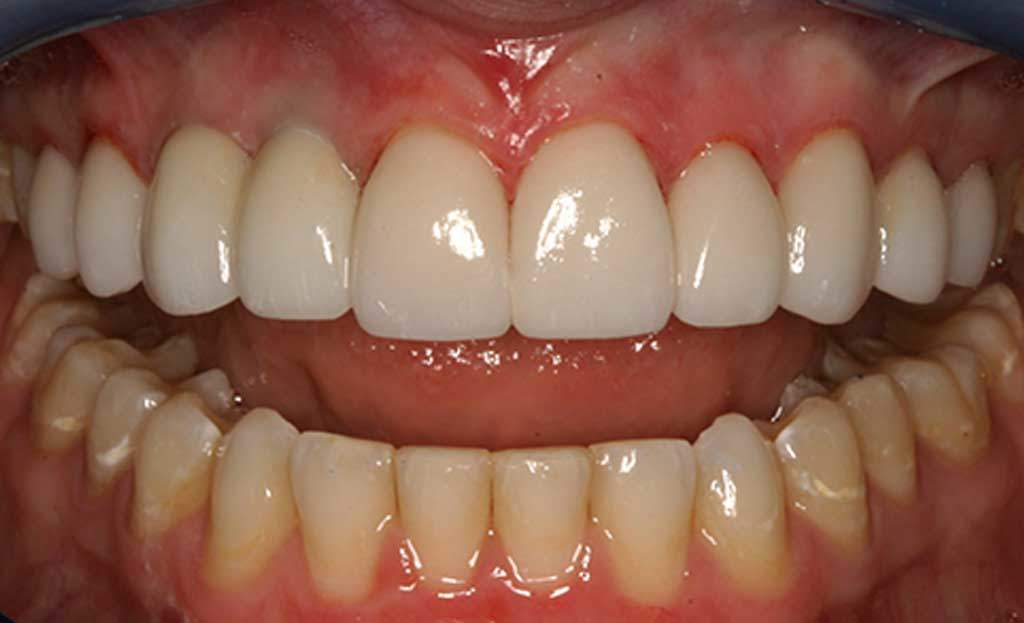 4-after-dental-implants-11229