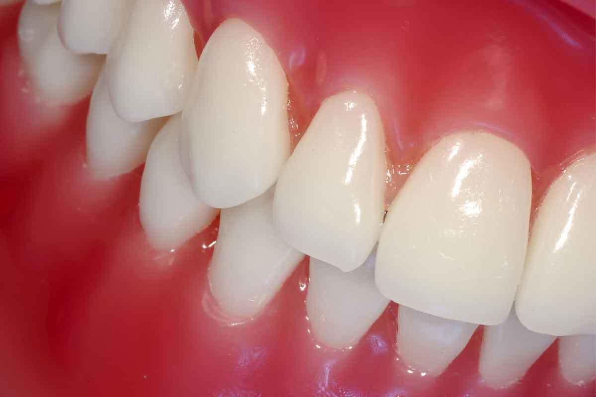 One-Visit Dental Crown?