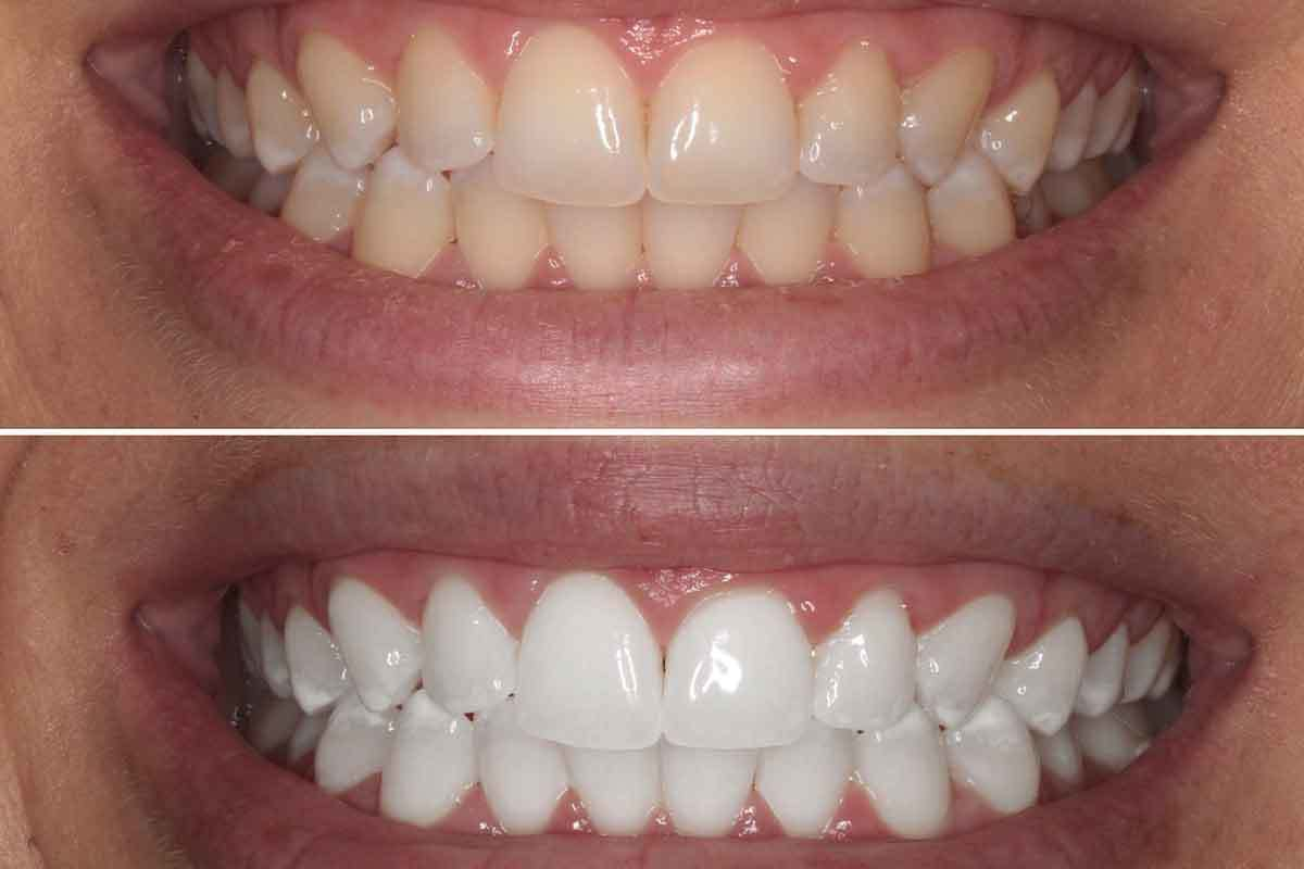 Professional Teeth Whitening In Brooklyn 11229 Eco Dental Ny