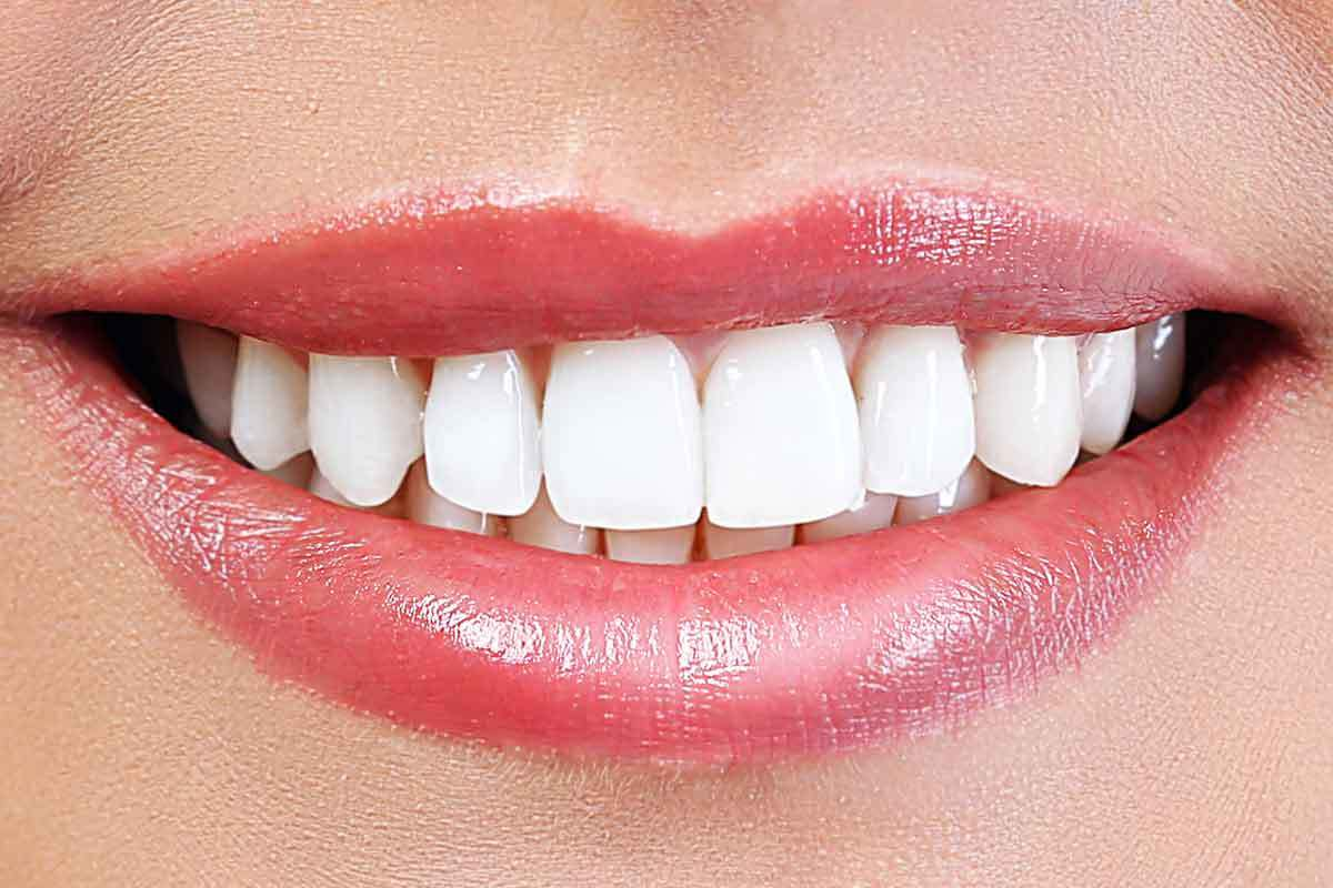 Teeth Whitening – An Incredible Look