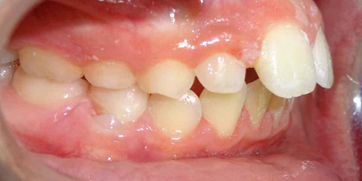 Unhealthy Dental Habit