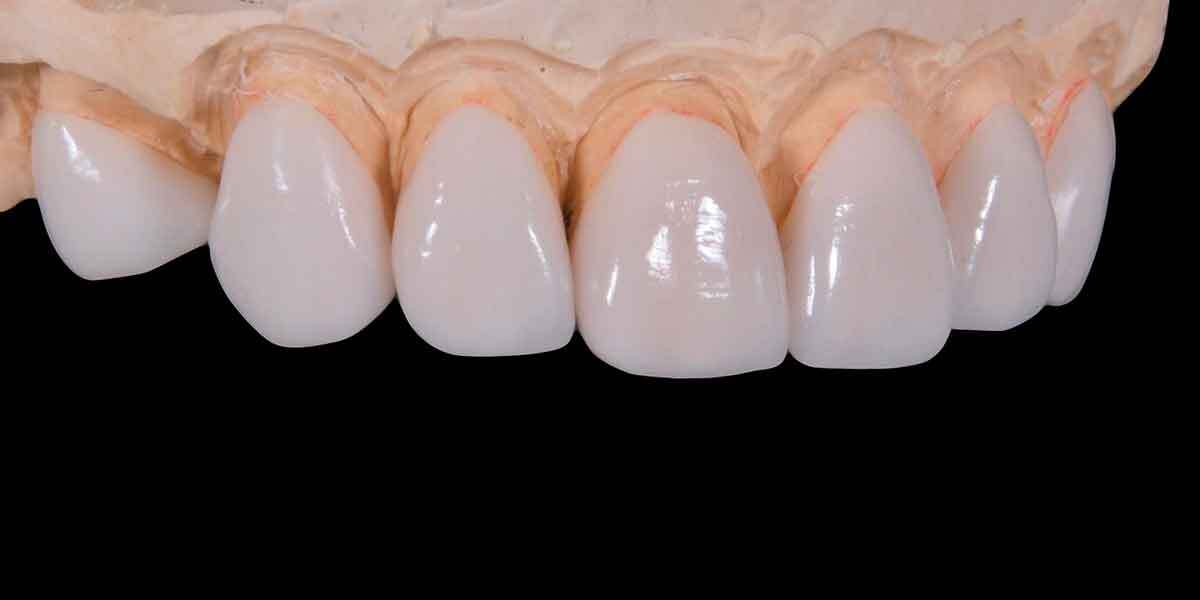 Bad Habits that Damage Your Teeth Part 4 of 4