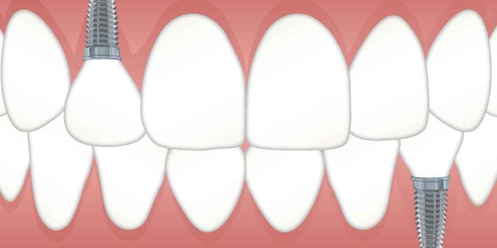 Dental Implants – Procedure and Benefits