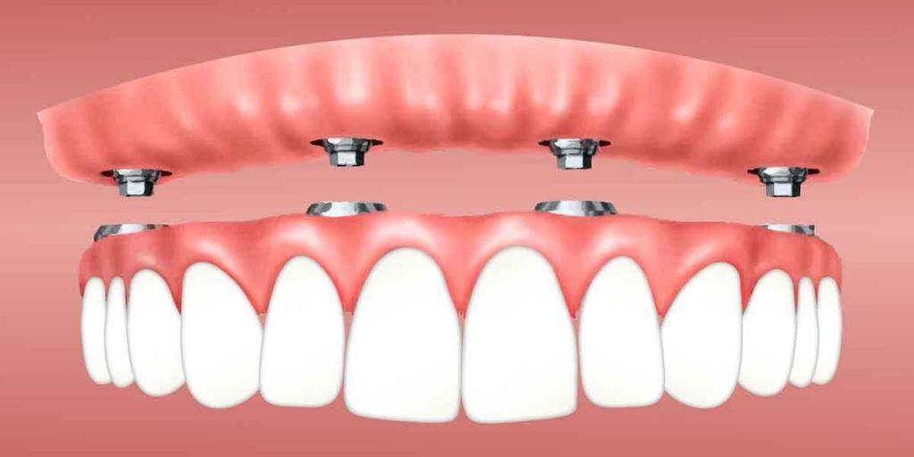Dental Implants vs. Dental Bridges