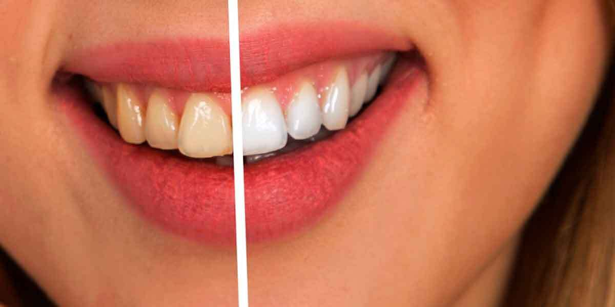 The Benefits of Professional Brooklyn Dental Cleaning