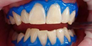 Things to Consider When you decide to go for Teeth Whitening Brooklyn Treatments